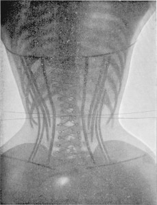 X-Rays-of-Women-in-Corsets-1-620x810