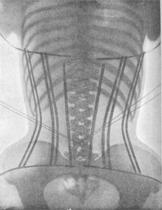 X-Rays-of-Women-in-Corsets-2-620x805